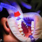 Zła metoda odżywiania się to większe niedostatki w jamie ustnej natomiast również ich zgubę